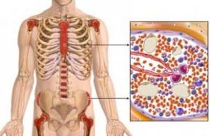 hypoplastic anemia